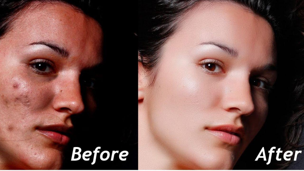skin-retouching-service-bangladesh